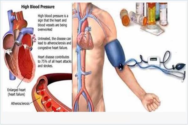 penyakit hipertensi gejala penyebab dan pengobatan