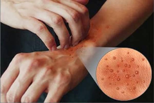 sebab gejala dan pengobatan penyakit dermatitis eksim