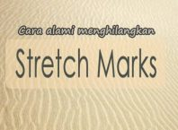 cara alami menghilangkan stretch mark