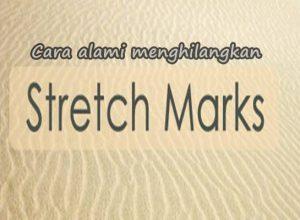 cara alami menghilangkan stretch mark