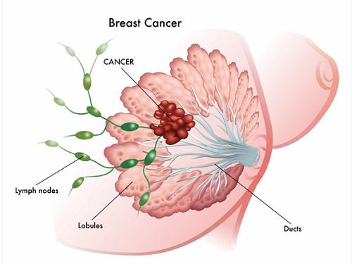 jaringan kanker payudara
