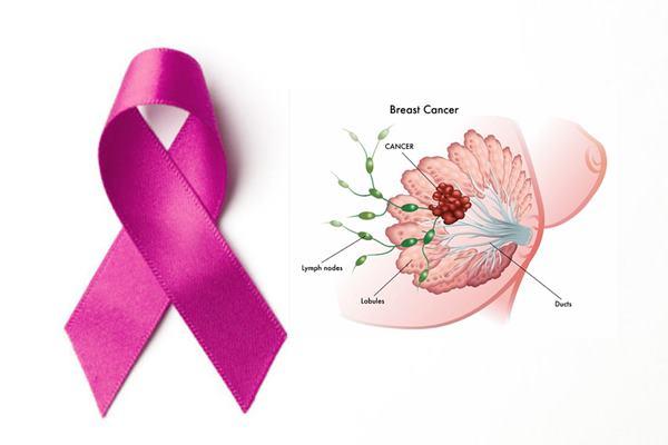 tanda gejala kanker payudara