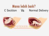 mana lebih baik melahirkan normal atau operasi caesar